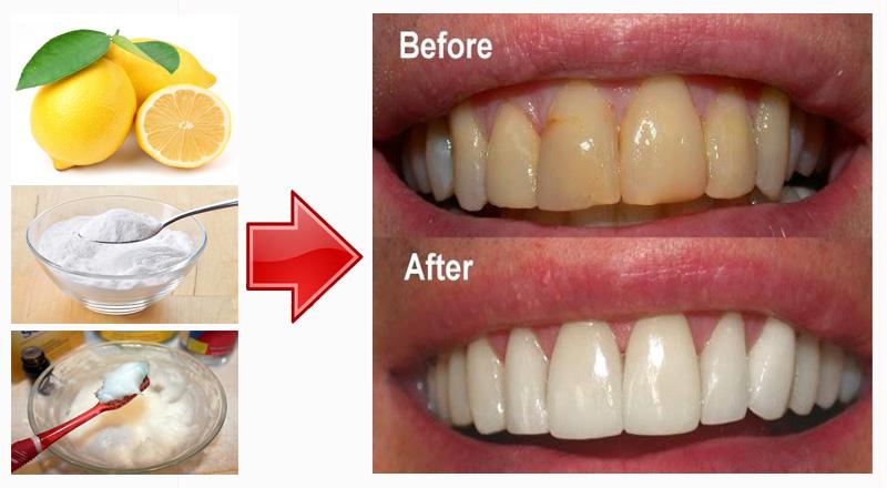 Terbukti Gigi Putih Cemerlang Hanya Dalam Waktu 1 Minit Mohon Di