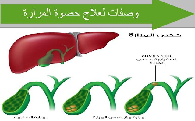 وصفات لعلاج حصوة المرارة بالاعشاب