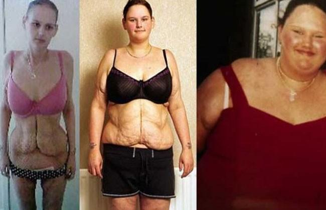 personas que bajar de peso antes y despues de matilda