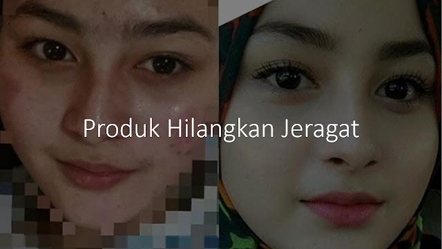 produk hilangkan jeragat malaysia