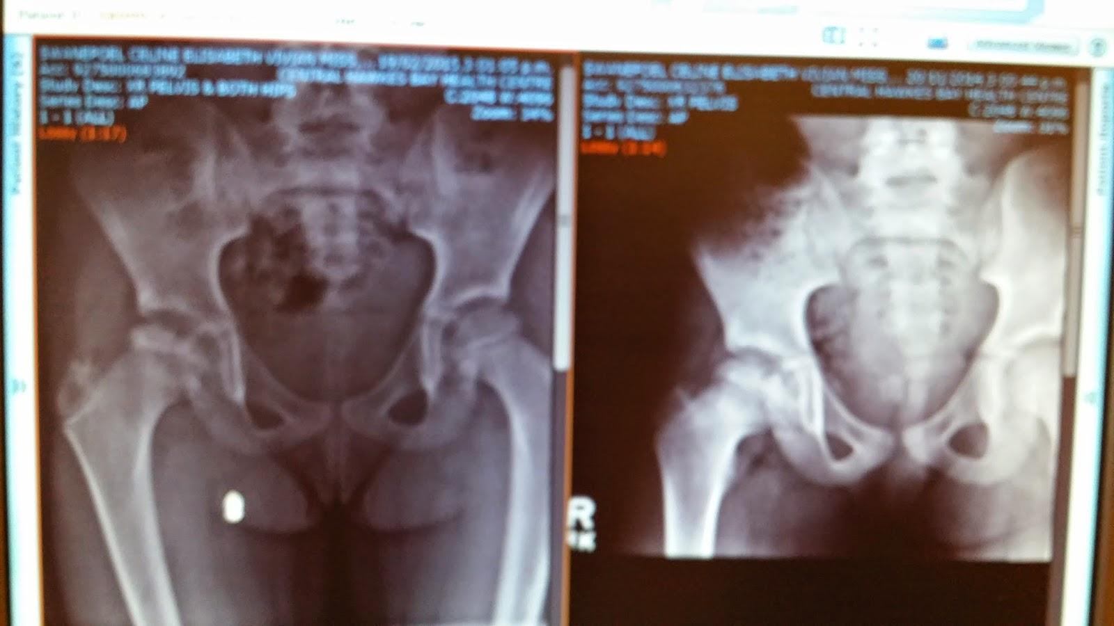 Celine's Perthes Disease X-Rays