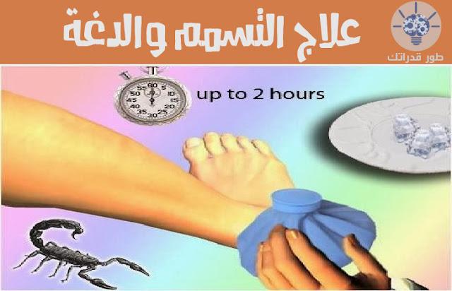 علاج التسمم والدغة