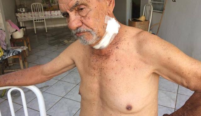 Ex-vereador é agredido com golpe de faca, em Sagres