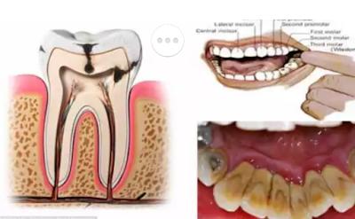 Hal yang Mudah Hilangkan Karang Gigi dalam Empat Langkah