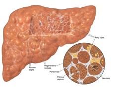 Obat Herbal Penyakit Liver Dengan Resep Alami