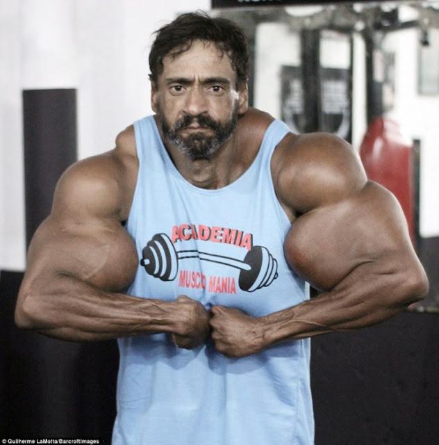 El Hulk brasileño se inyecta aceite para crecer sus músculos