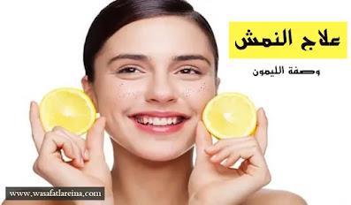علاج النمش,النمش,علاج النمش في الوجه,علاج النمش بالليزر,علاج الكلف,علاج الكلف والنمش,طرق علاج النمش,علاج النمش نهائيا,النمش وعلاجه,علاج النمش 100%,علاج النمش مجرب,علاج النمش طبيا,طريقة علاج النمش,ازالة النمش,علاج النمش والكلف,علاج النمش بالوجه,كريم لعلاج النمش,علاج يزيل النمش,لعلاج النمش بسرعه,علاج النمش بالاعشاب,لعلاج النمش نهائيا,علاج نمش الوجه,علاج النمش فى وقت قياسى,علاج النمش والكلف مجرب,علاج النمش والبقع البنيه,اسعار علاج النمش بالليزر,تكلفة علاج النمش بالليزر