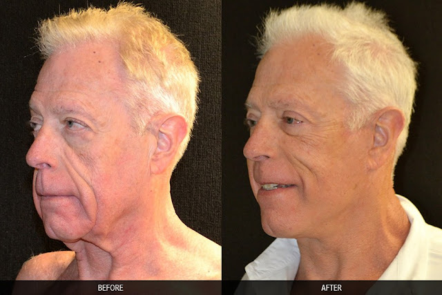 neck-lift-before-after