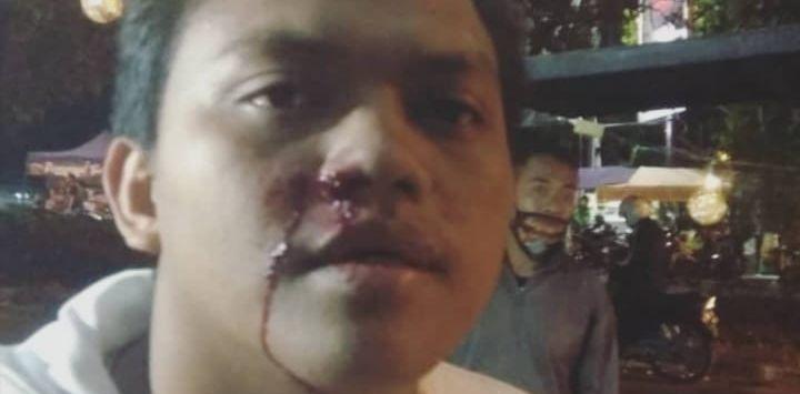 Remaja Jadi Korban Penembakan di Bandung, 'Teman Saya Disandera, Kepala Dipukul sampai Berdarah'