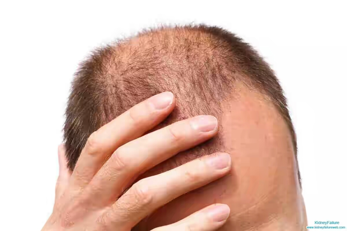 Maztrends Blog What Should Patients Do With Stage 5 Kidney Failure With Hair Loss