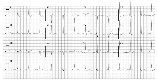 ECG of Wolff Parkinson White syndrome (WPW) with postero-septal bypass tract