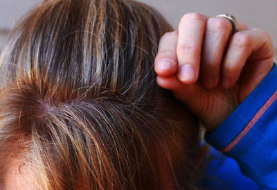 Contoh gambar rambut beruban dini