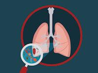 Waspada penyakit bronkitis, kenali gejalanya