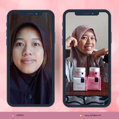 before after penggunaan Scarlett Brightly Ever After Cream