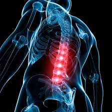 Lumbar or Low Back Implants to Fix the Spine 3
