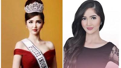 Sonia%2BFergina%2BCitra4 Intip Kecantikan Sonia Fergina Citra, Foto Terbaru Putri Indonesia 2018