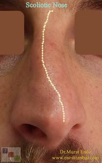 scoliotic nose deformity