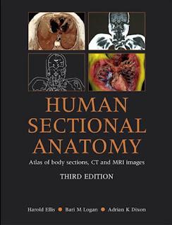 Human Sectional Anatomy Third Edition