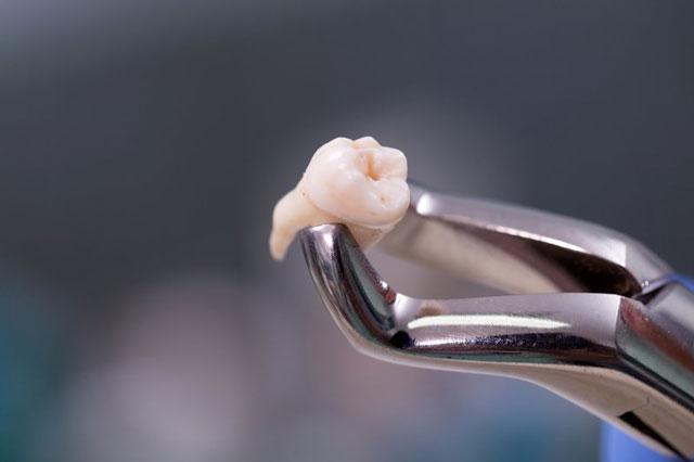 قلع الاسنان الدائمة واسنان الأطفال