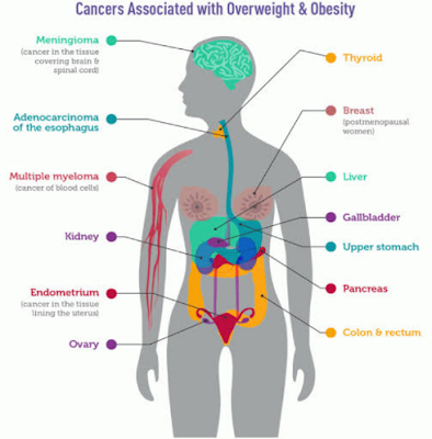 Complete overweight vs obesity insights