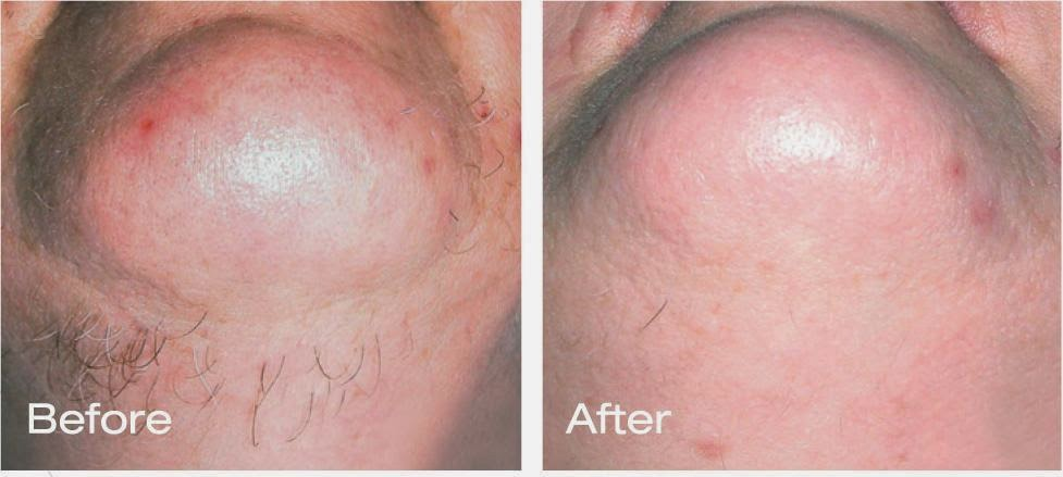 LeFore's Spa: Electrolysis Hair Removal