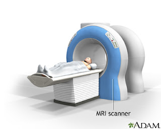Effective Screening For Alzheimer S Disease Through Mri Of