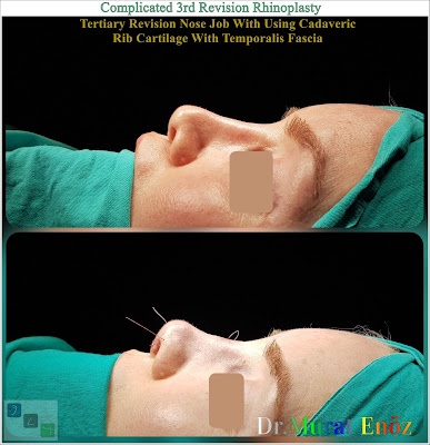 Complicated 3rd Revision Rhinoplasty  Tertiary Revision Nose Job With Using Cadaveric Rib Cartilage With Temporalis Fascia