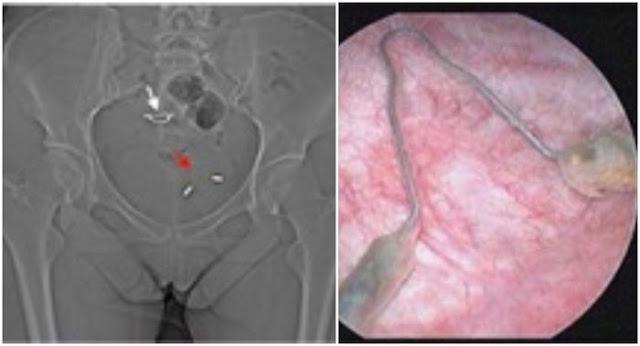 Wanita 25 tahun ini kehilangan indung telur, rahim hingga jari kakinya, setelah alat KB Spiral atau IUD masuk ke dalam perutnya.