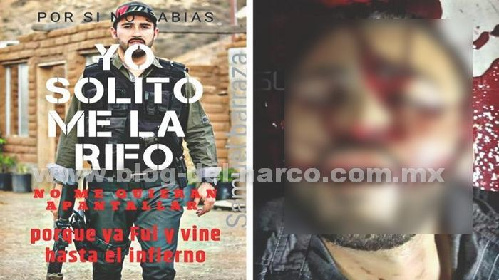 Fotos, Perforado a Balazos y con la boquita abierta, quedo Samuel Barraza cantante de Narcocorridos en Tijuana