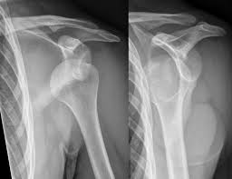 fracture of the surgical neck of the humerus- by www.physioscare.com
