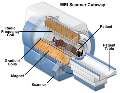 diffusion tensor imaging (dti) with an mri gives insight on how concussions  differ from person to person