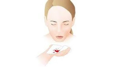 Dấu hiệu khi ung thư vòm họng cần cảnh giác