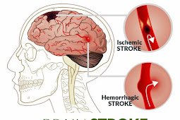 Non Pharmacology Stroke
