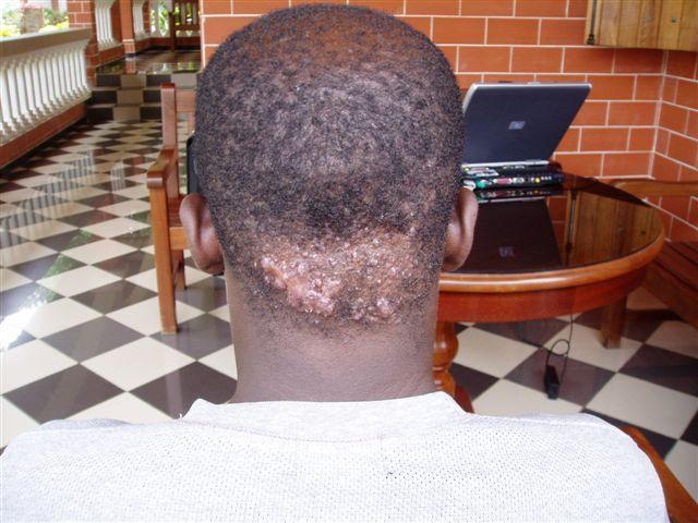 La peau sensible avec komedonami