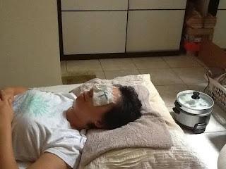 Terapi mata dengan kompres air hangat