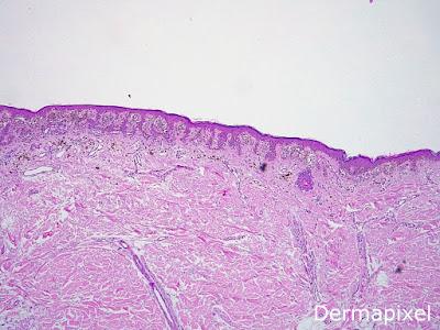 diabetes mellitus de acantoma de células claras