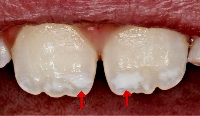 PDF: Aspecto clínico de la mancha blanca causada por caries dental