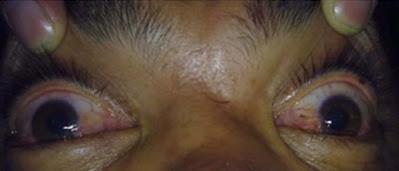 Eye Clinical Manifestations due to Methanol Poisoning