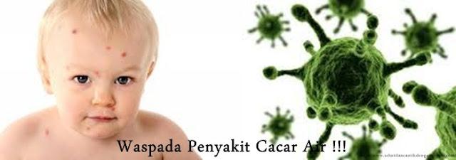 Obat Cacar Air Herbal, Ampuh Sembuhkan Cacar Air Sampai Tuntas : QnC Jelly Gamat Solusinya