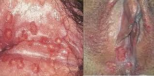 cara menyembuhkan luka lecet pada vagina