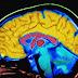 За да запомним нещо, непременно забравяме друго нещо, твърдят невробиолози
