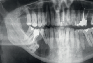 Lower molar with cyst