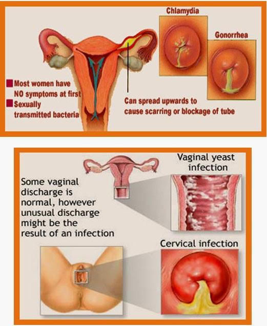 vaginal secretion reason