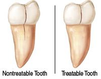 Tooth Crack and Cavity Fillings