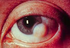 Nurul1904 Penyakit Atau Kelainan Mata