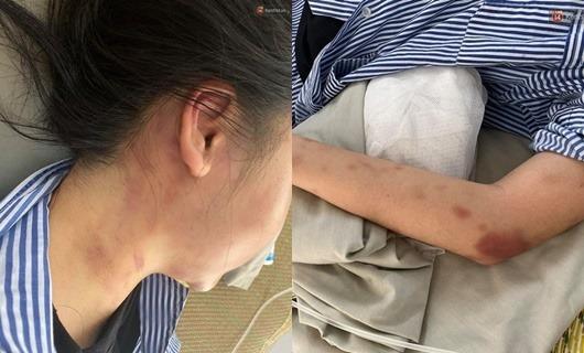 Nguyên nhân cô gái ở Yên Bái bị thanh niên xăm trổ đánh đập dã man