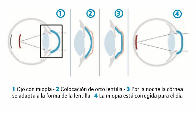 """No se trata de una adaptación convencional de lentes de contacto 61a81e3300fb"