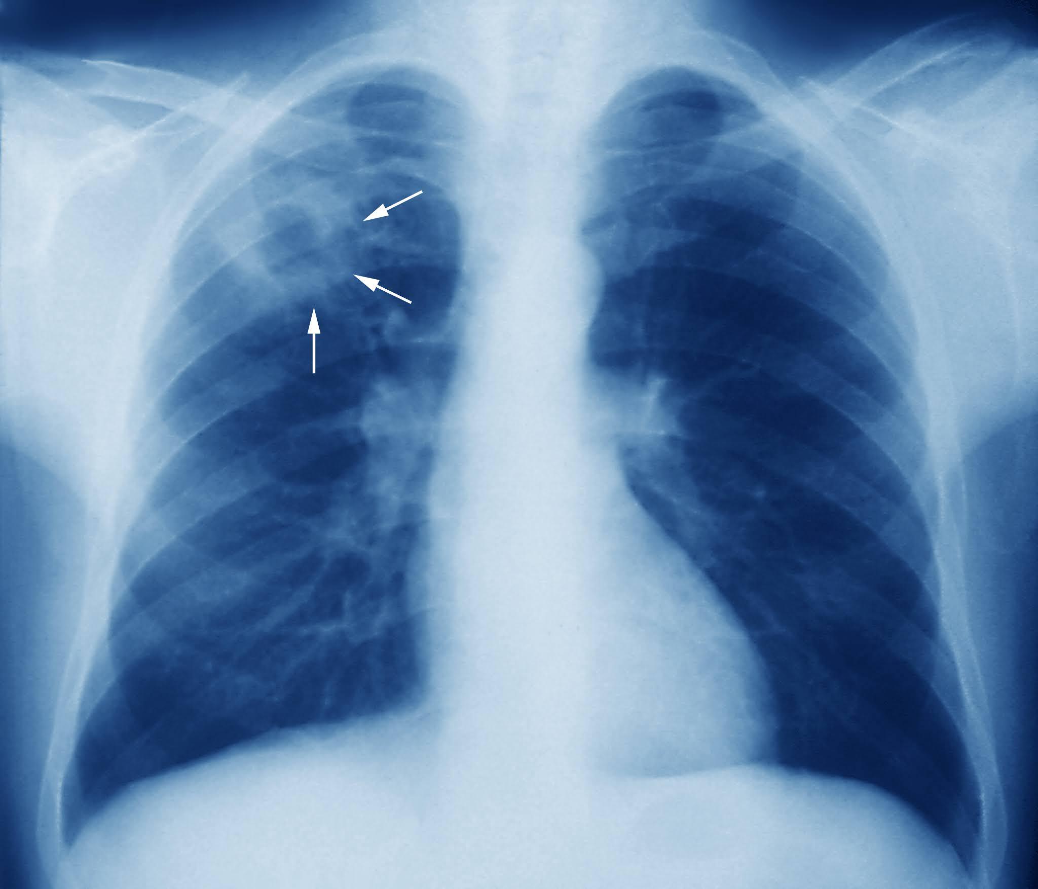 tuberculoza pierde în greutate)