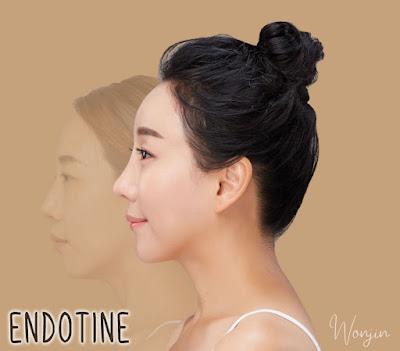ENDOTINE, Korean Plastic Surgery Method for Forehead Wrinkles