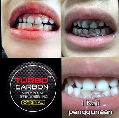 turbo carbon teeth whitening halal